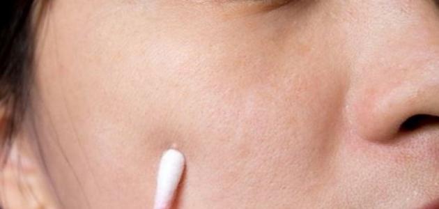 سبب ظهور الحبوب البيضاء في الوجه موقع مصادر
