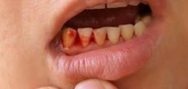 ما هي أسباب خروج الدم من الفم