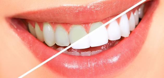 كم يدوم تبييض الأسنان