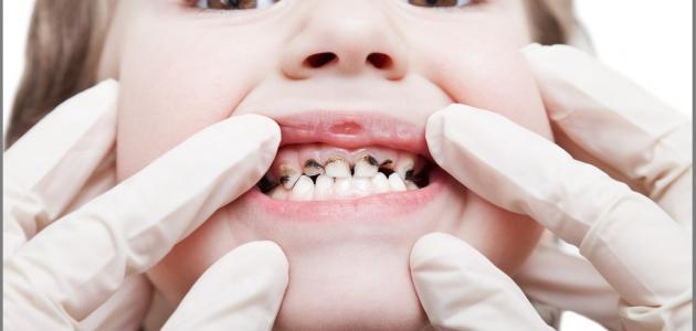 كيف أعالج تسوس الأسنان