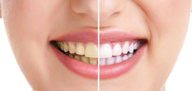 طريقة لتبييض الأسنان بسرعة