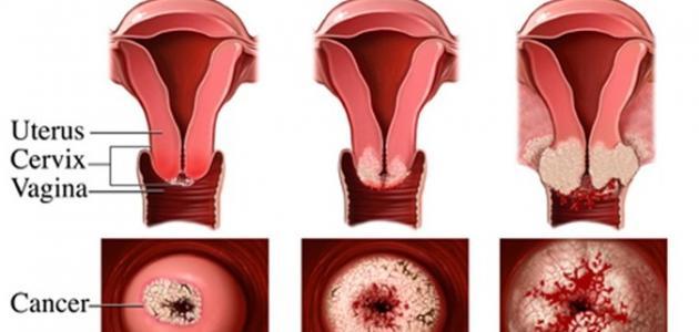 أعراض قرحة الرحم وعلاجها موقع مصادر