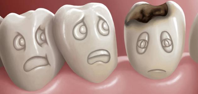 علاج تسوس الأسنان في المنزل