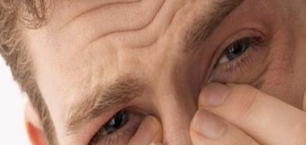 اعراض لحمية الانف