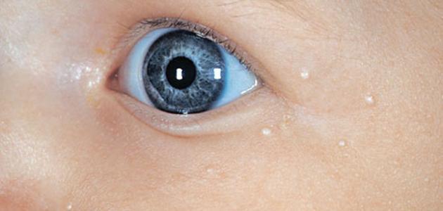 ظهور بقع بيضاء في الوجه عند الأطفال موقع مصادر