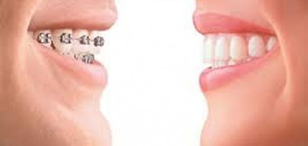 كيفية ازالة تقويم الاسنان