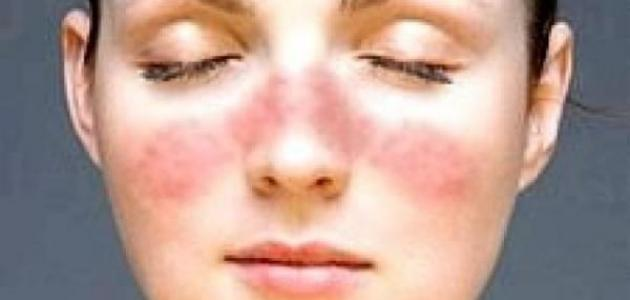 ما علاج قشرة الوجه