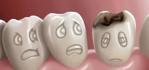 أسباب سقوط الأسنان