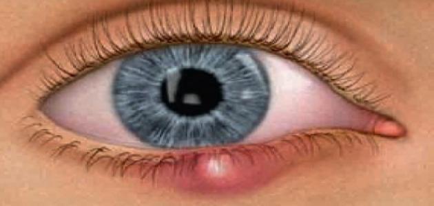 ما هي أسباب حساسية العين موقع مصادر