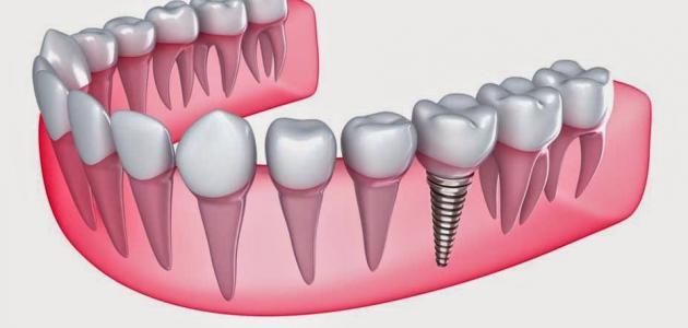 عدد جذور الأسنان