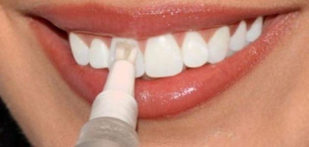 كيف يتم تبييض الاسنان