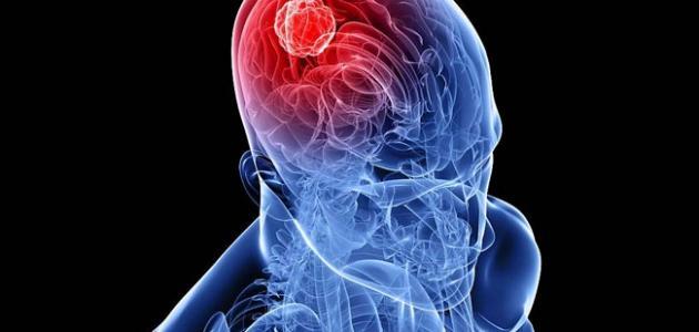 أعراض سرطان المخ موقع مصادر