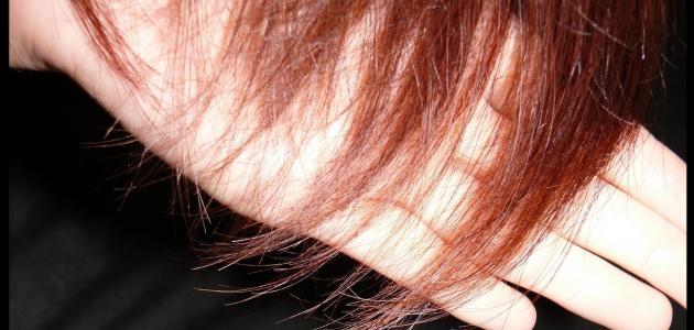 تساقط الشعر بسبب نقص الحديد موقع مصادر