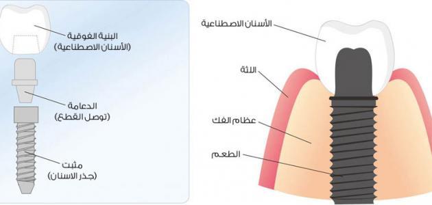 مراحل زراعة الأسنان موقع مصادر