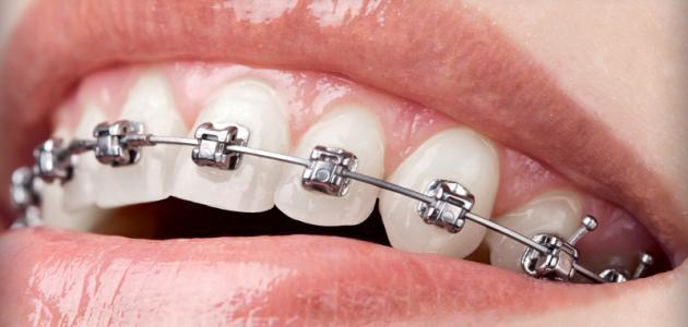 فوائد تقويم الأسنان