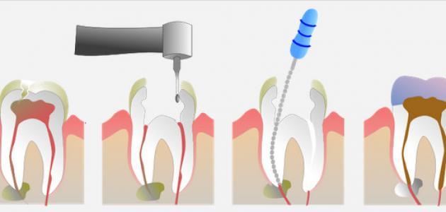 آثار جانبية لسحب عصب الأسنان موقع مصادر