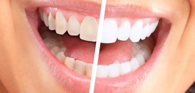طرق تبييض الأسنان طبيعياً
