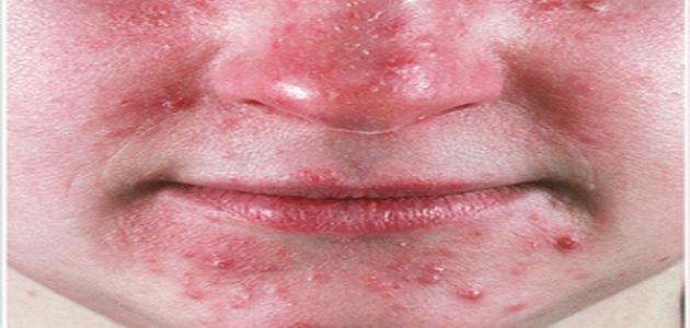 كيف تعالج احمرار الوجه