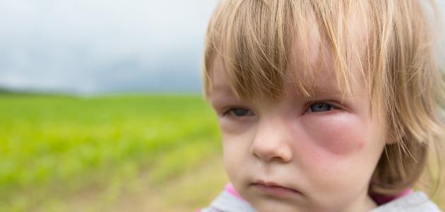 انتفاخ العين عند الاطفال 10
