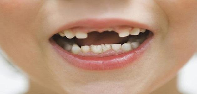 تفسير حلم سقوط الاسنان موقع مصادر