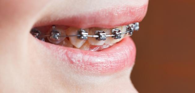ما هو تقويم الاسنان