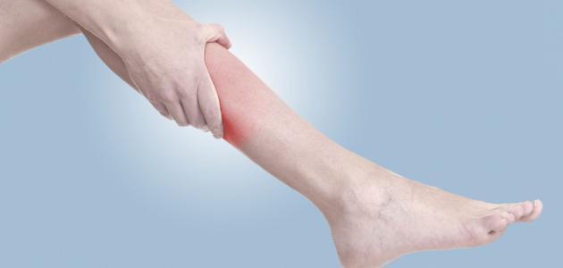 أسباب ألم الساقين موقع مصادر