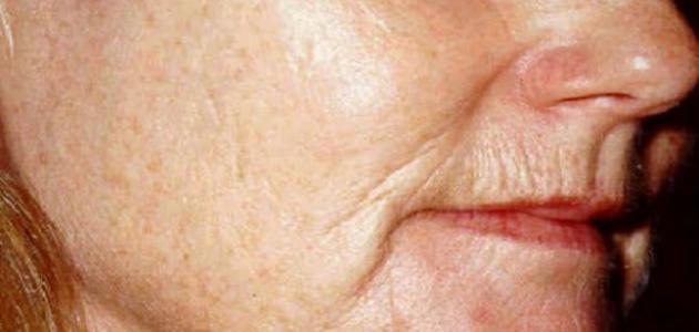 ما علاج تجاعيد الوجه