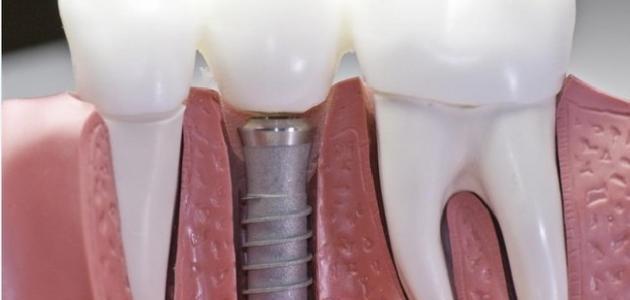 طريقة زراعة الأسنان