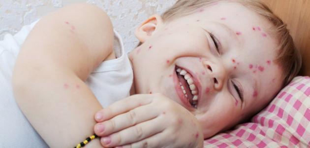 أسباب ظهور الحبوب في وجه الأطفال