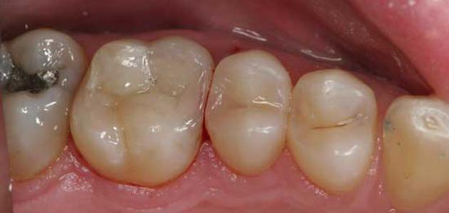 طريقة حشو الأسنان