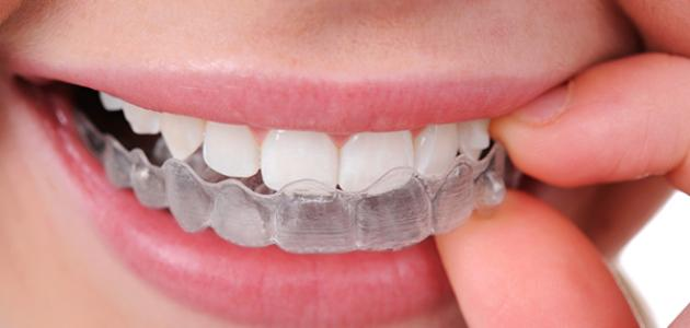 تقويم الأسنان - فيديو