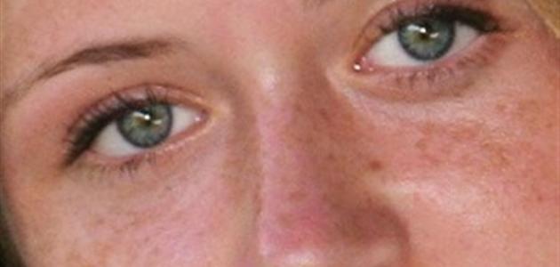 كيف ازيل تصبغات الوجه