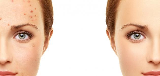 كيفية ازالة الحبوب من الوجه