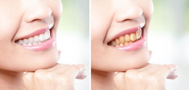 علاج صفار الأسنان
