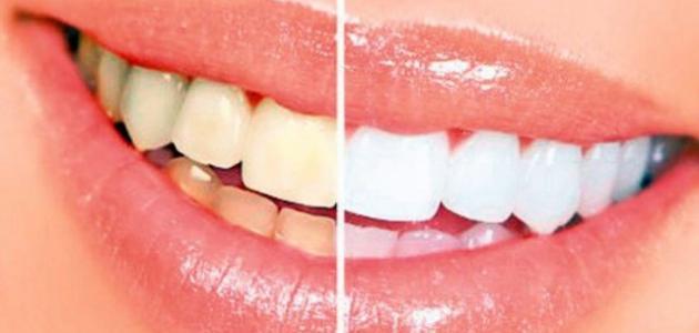 ما هو سبب إصفرار الأسنان