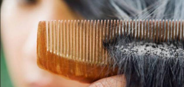 كيفية إزالة القشرة من الشعر نهائيا موقع مصادر