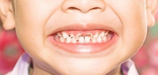 فقدان الأسنان عند الأطفال في مكان متسخ ودور الأهل - فيديو