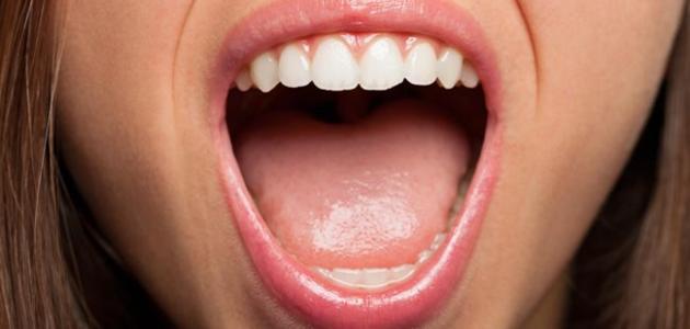 ما هو سبب مرارة الفم