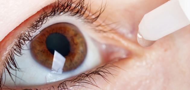 ما علاج حساسية العين موقع مصادر