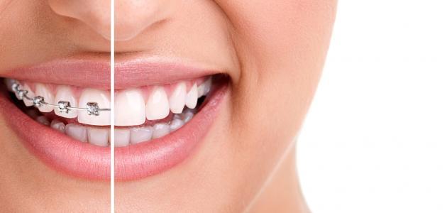 تقويم الأسنان ينحف