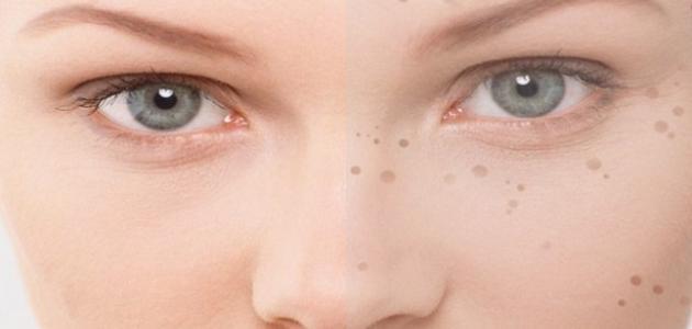 وصفة فعالة لإزالة البقع السوداء من الوجه