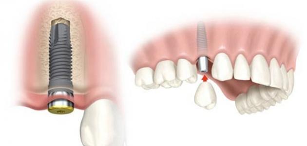 زراعة الأسنان وفوائدها - فيديو
