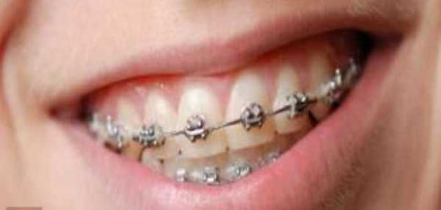 ما هو تقويم الأسنان