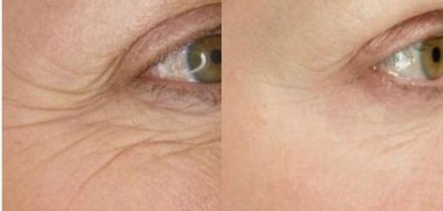 كيف تتخلص من تجاعيد الوجه