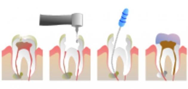 ما هو عصب الأسنان