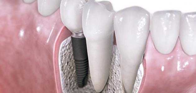 كيف تكون زراعة الاسنان