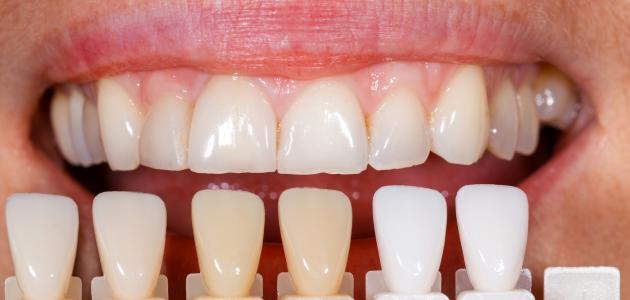 تغيّر لون الأسنان، الأسباب والعلاج