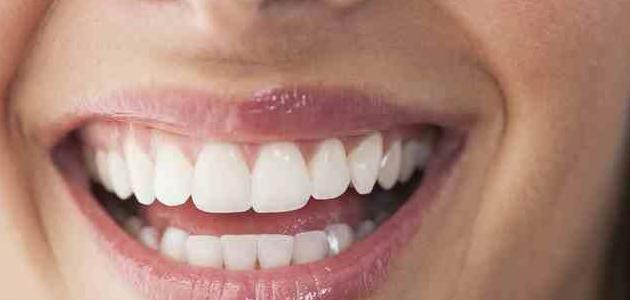 أسرع وأسهل طريقة لتبييض الأسنان