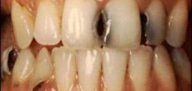 علاج تسوس الأسنان