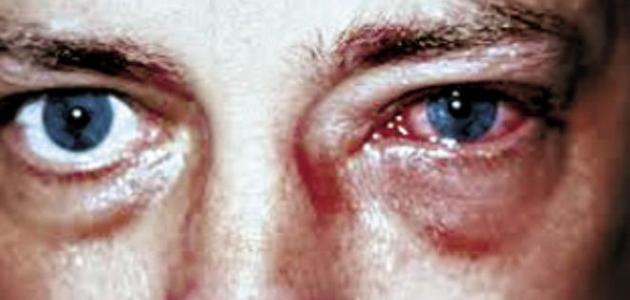 أعراض حساسية العين موقع مصادر